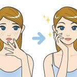 get rid of pimples and acne scars