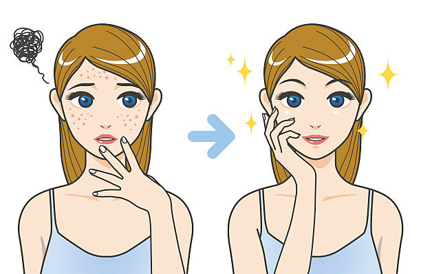 acne treatment before after image illustration