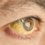 jaundice causes and treatment in kathmandu nepal