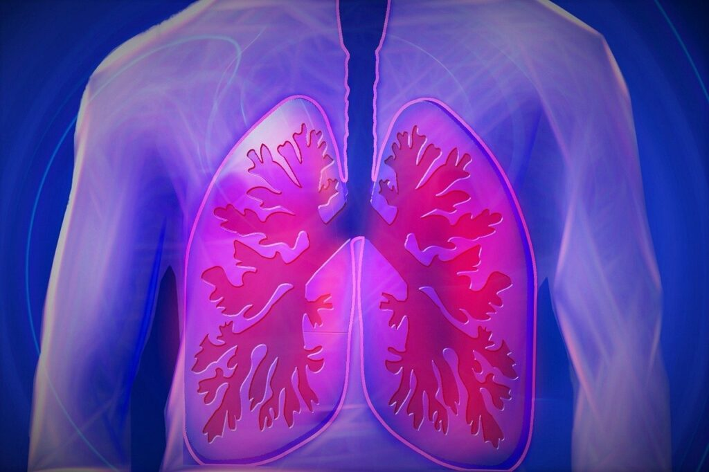 pneumonia and covid-19 affecting lungs