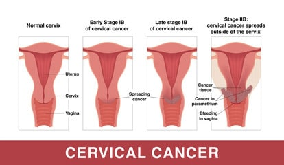 HPV Infection and Cervical Cancer