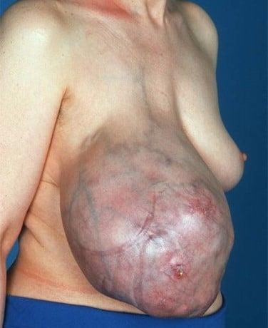 Phyllodes Tumor