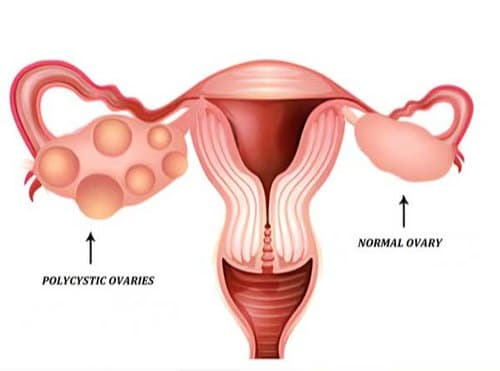 pcos-pcod-menstrual-disorder-treatment